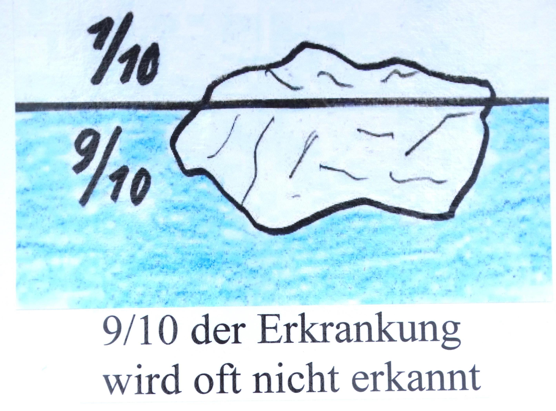Eisbergdarstellung